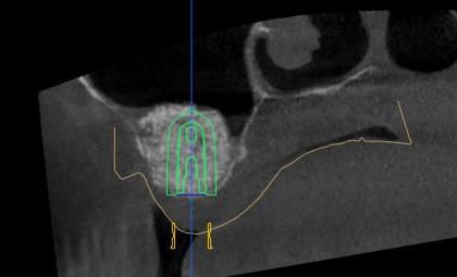 Digitale 3D Implantologie
